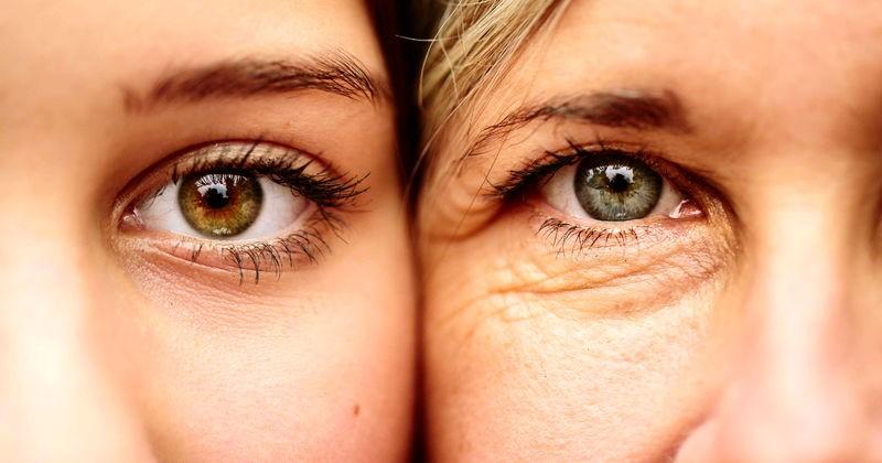 ویتامین سی مانع پیری زودرس