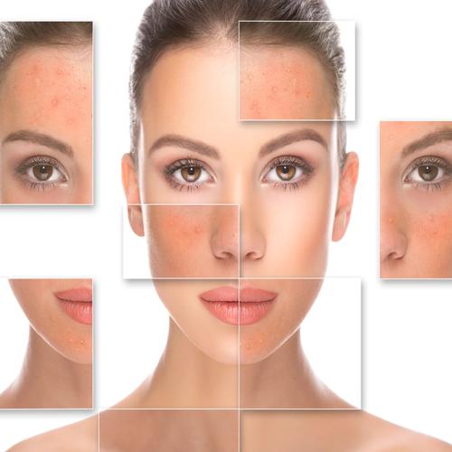 درمان جوش صورت با هزینه کم