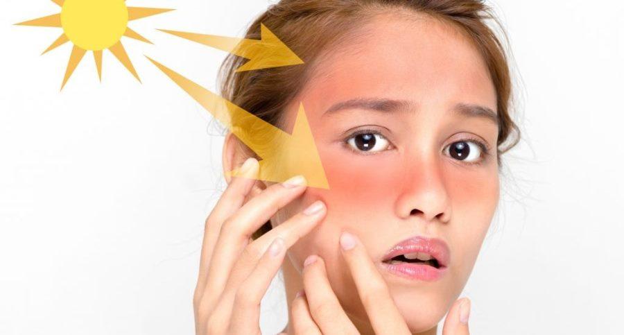 محافظت از پوست در برابر آفتاب سوختگی